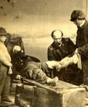 Civil War Battlefield Surgery